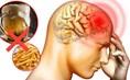 6 loại thực phẩm gây nguy hại cho trí nhớ