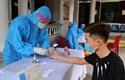 Thêm hai ca nhiễm mới, Việt Nam có 672 ca mắc bệnh COVID-19