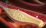 Tránh xa tuyệt đối những loại thực phẩm này khi bị máu nhiễm mỡ