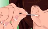Màu sắc ráy tai tiết lộ chính xác vấn đề sức khỏe của bạn