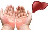 Chỉ cần vài giây để biết dấu hiệu trên bàn tay báo trước bệnh nan y