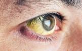 7 dấu hiệu ở mắt tưởng bình thường nhưng cho thấy bạn đang gặp nguy hiểm