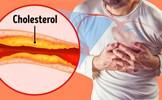 7 dấu hiệu tắc động mạch nguy hiểm mà chúng ta thường bỏ qua