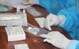 Bộ Y tế đề nghị không xét nghiệm định kỳ người đã tiêm đủ liều vaccine