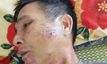 Vĩnh Tường, Vĩnh Phúc: Lời kêu cứu của một cựu binh bị nhiễm chất độc màu da cam