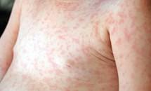 Thấy con bị sốt, nổi ban, mụn nước toàn thân, cha mẹ cần nghĩ ngay đến bệnh này