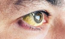 Đôi mắt nói gì về sức khỏe của bạn