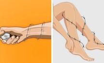 Dấu hiệu bệnh loạn dưỡng cơ bắp dễ bị bỏ qua