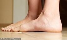 Bác sĩ tiết lộ bàn chân nói lên sức khỏe của bạn như thế nào?