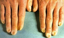 Kiểm tra móng tay ngay bây giờ để biết tình trạng sức khỏe