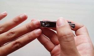 Cắt móng tay sai cách có thể bị nhiễm trùng